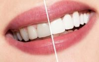 best teeth whitening method